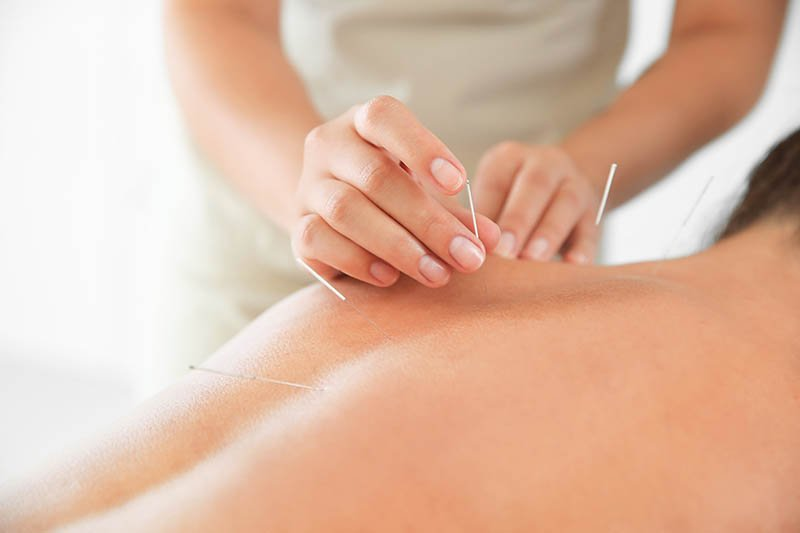 femme qui pose des aiguilles d'Acupuncture sur le dos d'un homme